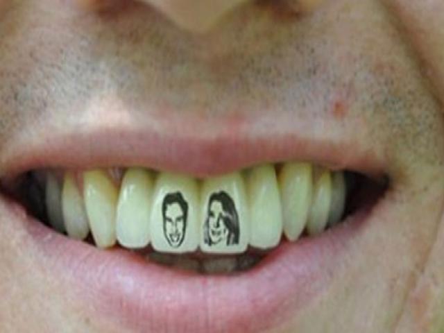 Dişlerde yeni trend