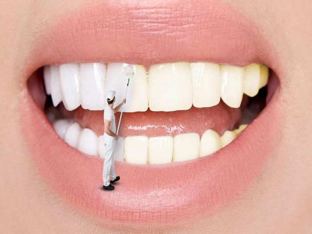 Diş Beyazlatma Hakkında Her Şey