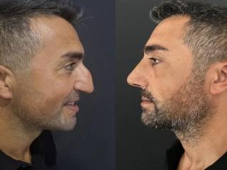 Bir ameliyat ile burnunuzda inanılmaz değişiklik;